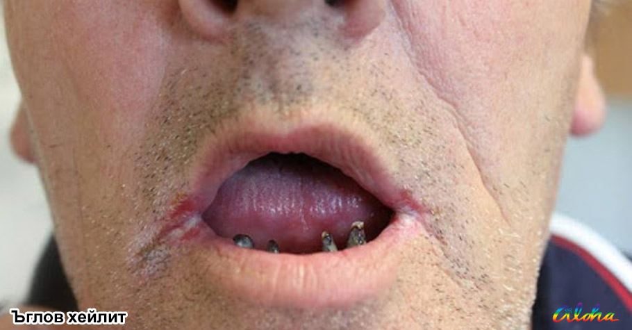 Angular cheilitis and vitamin B12 deficiency